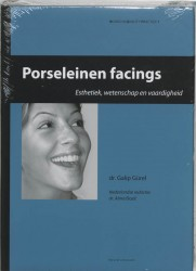 Porseleinen facings